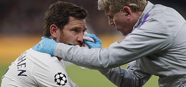 Foto: Tottenham komt met update over blessure Vertonghen